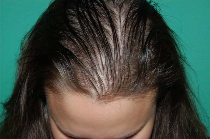 Problem of Hair Fall